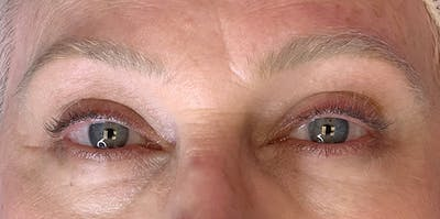 3D Microblading/ Henna Brows Gallery - Patient 11676271 - Image 1