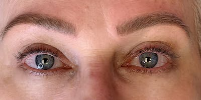 3D Microblading/ Henna Brows Gallery - Patient 11676271 - Image 2