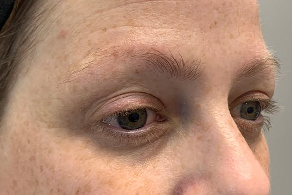 3D Microblading/ Henna Brows Gallery - Patient 11676272 - Image 1