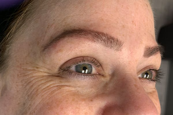 3D Microblading/ Henna Brows Gallery - Patient 11676272 - Image 2