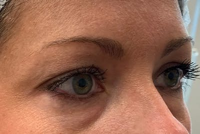 3D Microblading/ Henna Brows Gallery - Patient 11676273 - Image 18