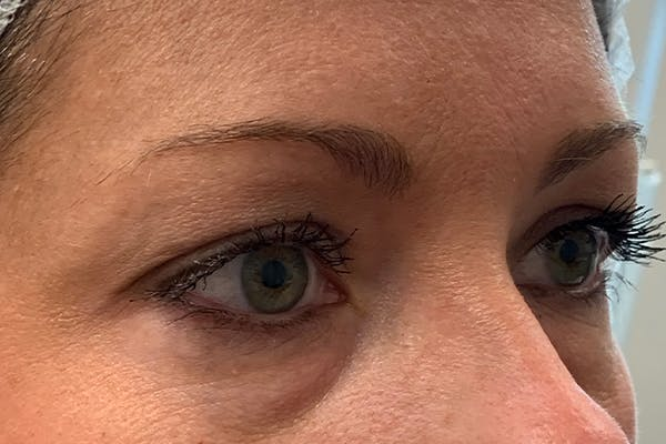 3D Microblading/ Henna Brows Gallery - Patient 11676273 - Image 1