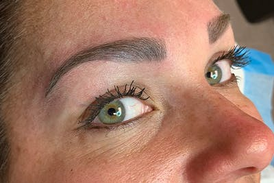 3D Microblading/ Henna Brows Gallery - Patient 11676273 - Image 2