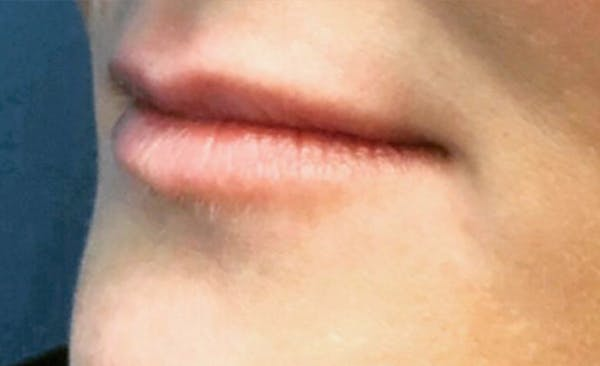 Lip Filler Gallery - Patient 11676301 - Image 1