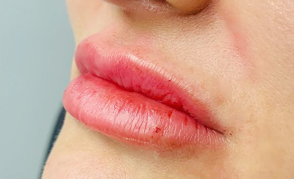 Lip Filler Gallery - Patient 11676301 - Image 2