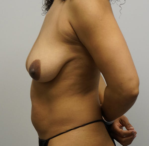 Breast Augmentation with Mastopexy Gallery - Patient 55260824 - Image 1