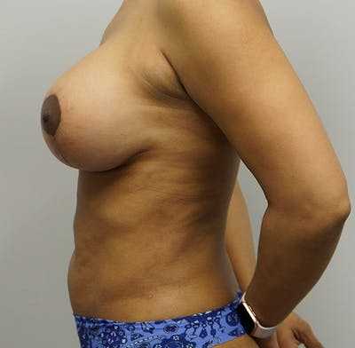 Breast Augmentation with Mastopexy Gallery - Patient 55260824 - Image 2