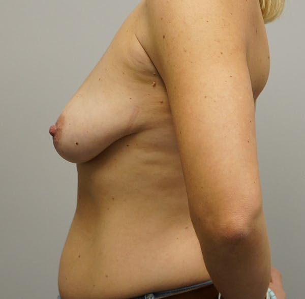 Breast Augmentation with Mastopexy Gallery - Patient 55260825 - Image 1