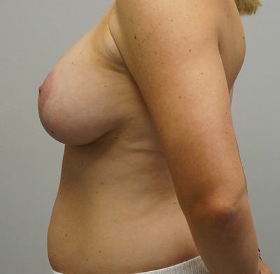 Breast Augmentation with Mastopexy Gallery - Patient 55260825 - Image 2