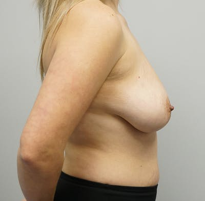 Breast Lift Gallery - Patient 55260828 - Image 1
