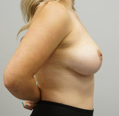 Breast Lift Gallery - Patient 55260828 - Image 2