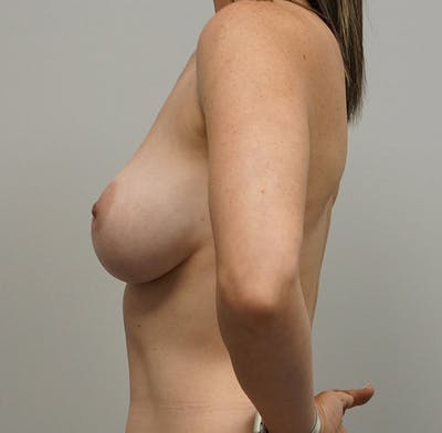Breast Lift Gallery - Patient 55260829 - Image 1