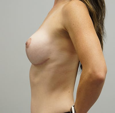 Breast Lift Gallery - Patient 55260829 - Image 2