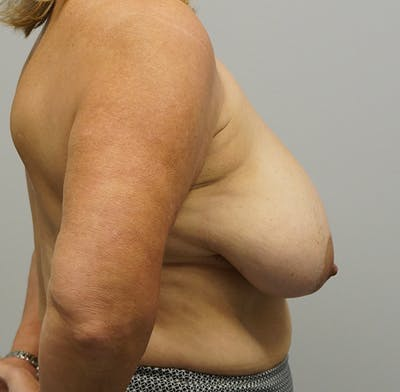 Breast Reduction Gallery - Patient 55260832 - Image 1