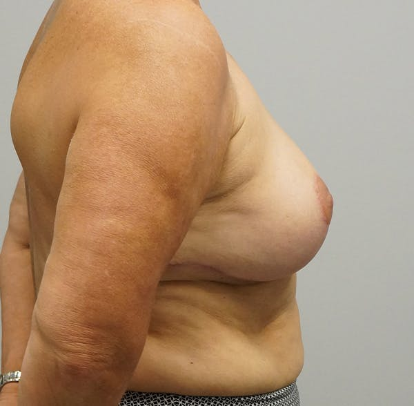 Breast Reduction Gallery - Patient 55260832 - Image 2