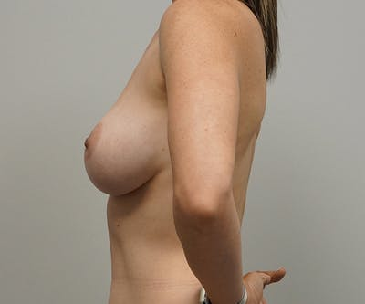 Breast Revision Surgery Gallery - Patient 55260833 - Image 1