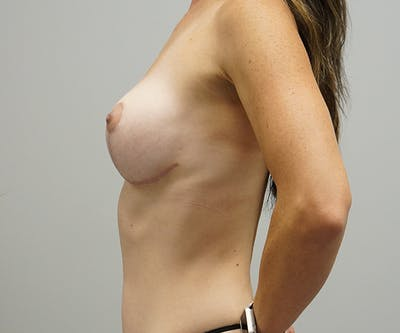 Breast Revision Surgery Gallery - Patient 55260833 - Image 2