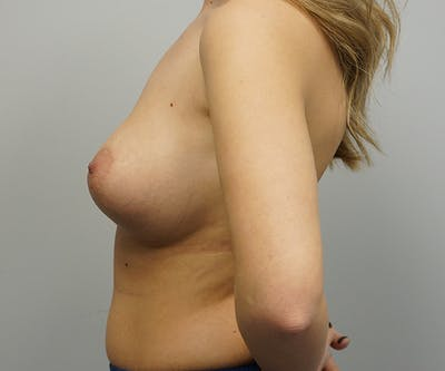 Breast Revision Surgery Gallery - Patient 55260834 - Image 1