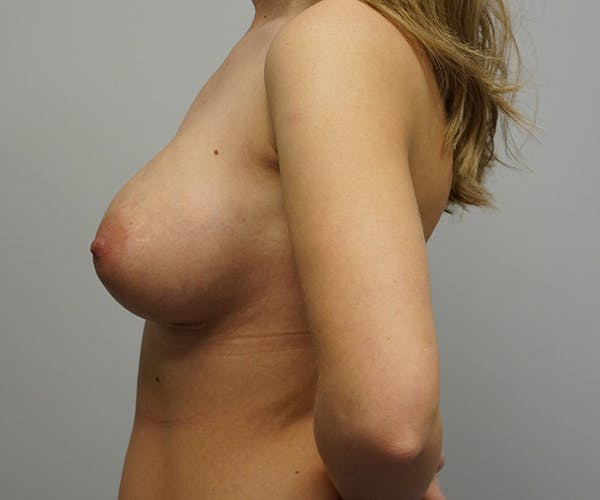 Breast Revision Surgery Gallery - Patient 55260834 - Image 2