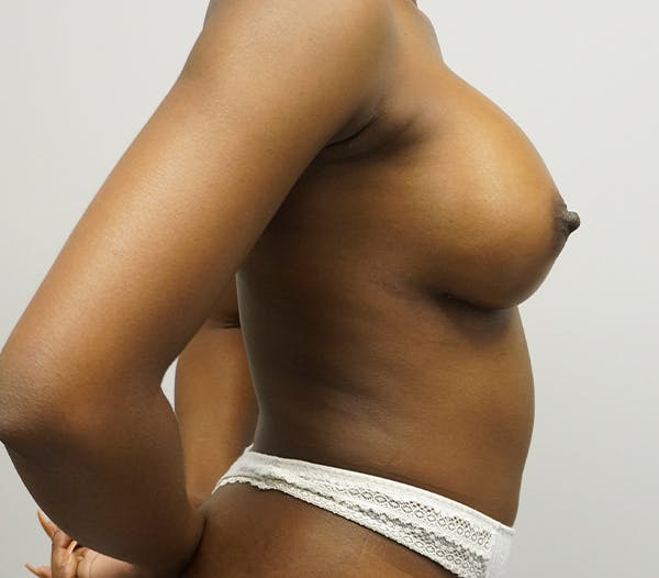 Breast Augmentation Gallery - Patient 55260856 - Image 2