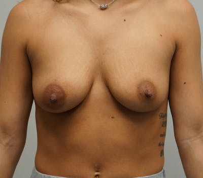Breast Augmentation Gallery - Patient 55260857 - Image 1