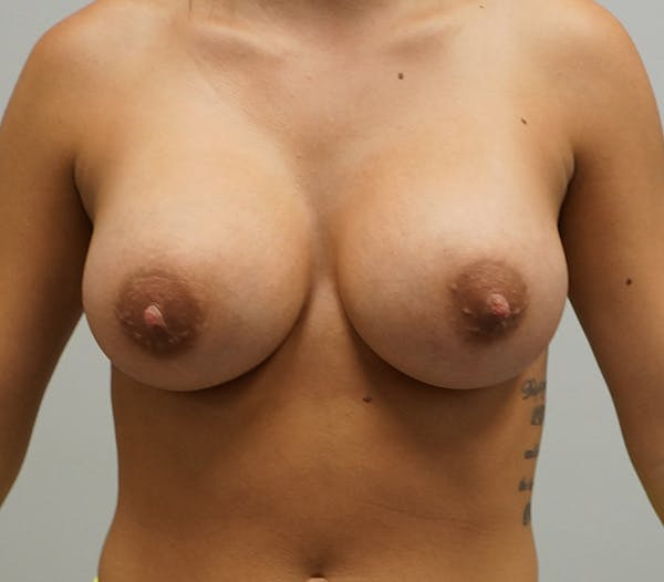 Breast Augmentation Gallery - Patient 55260857 - Image 2