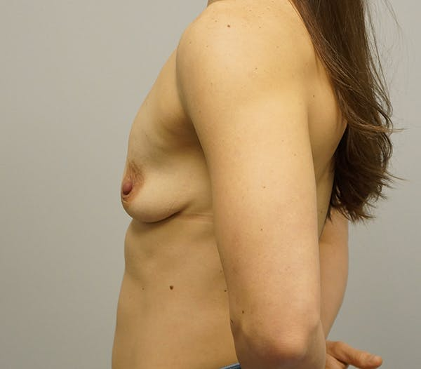 Breast Augmentation Gallery - Patient 55260858 - Image 1
