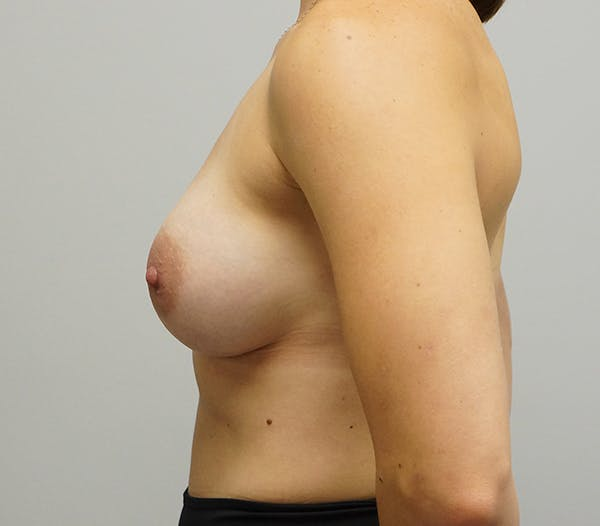 Breast Augmentation Gallery - Patient 55260858 - Image 2