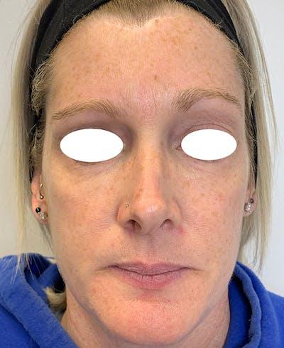 Halo Laser Gallery - Patient 55260909 - Image 1