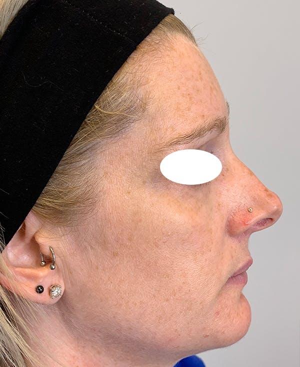 Halo Laser Gallery - Patient 55260909 - Image 3
