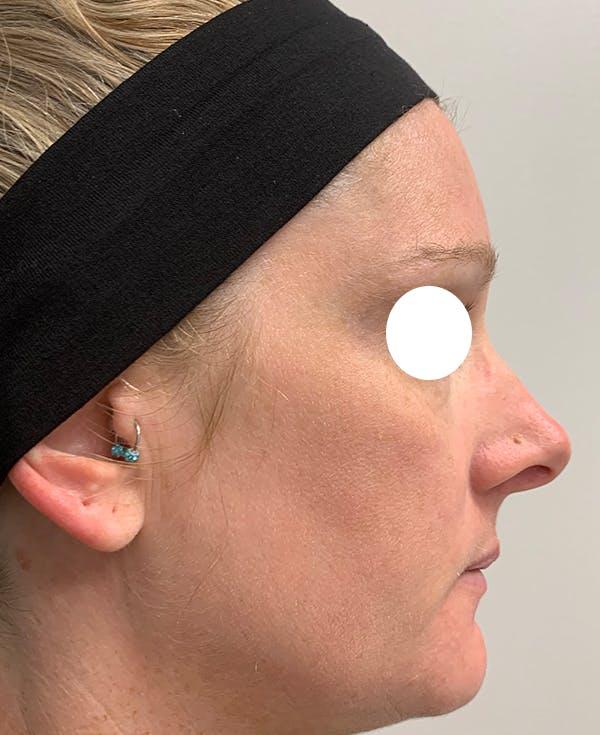 Halo Laser Gallery - Patient 55260909 - Image 4