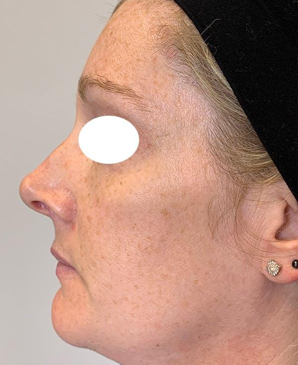 Halo Laser Gallery - Patient 55260909 - Image 5