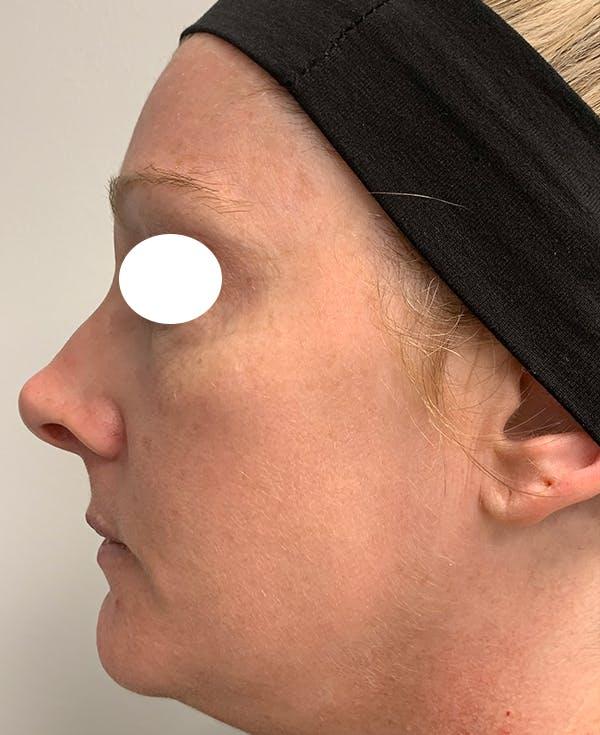 Halo Laser Gallery - Patient 55260909 - Image 6
