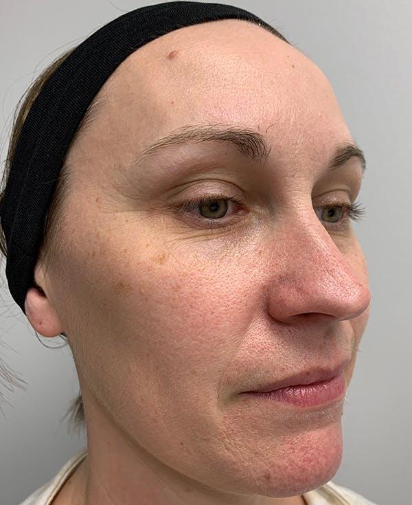 Halo Laser Gallery - Patient 55260911 - Image 9