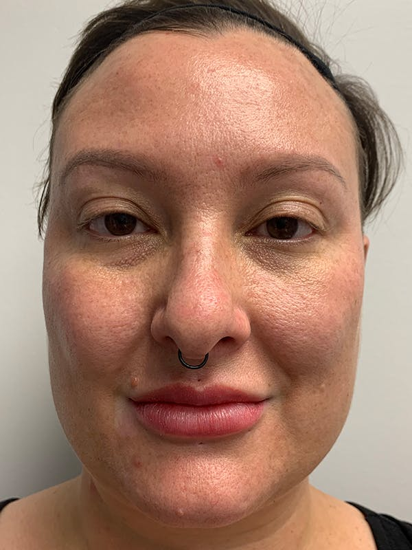Chemical Peels Gallery - Patient 55482768 - Image 1
