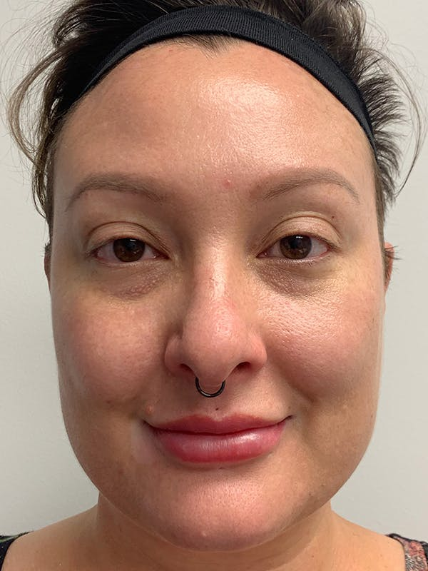 Chemical Peels Gallery - Patient 55482768 - Image 2