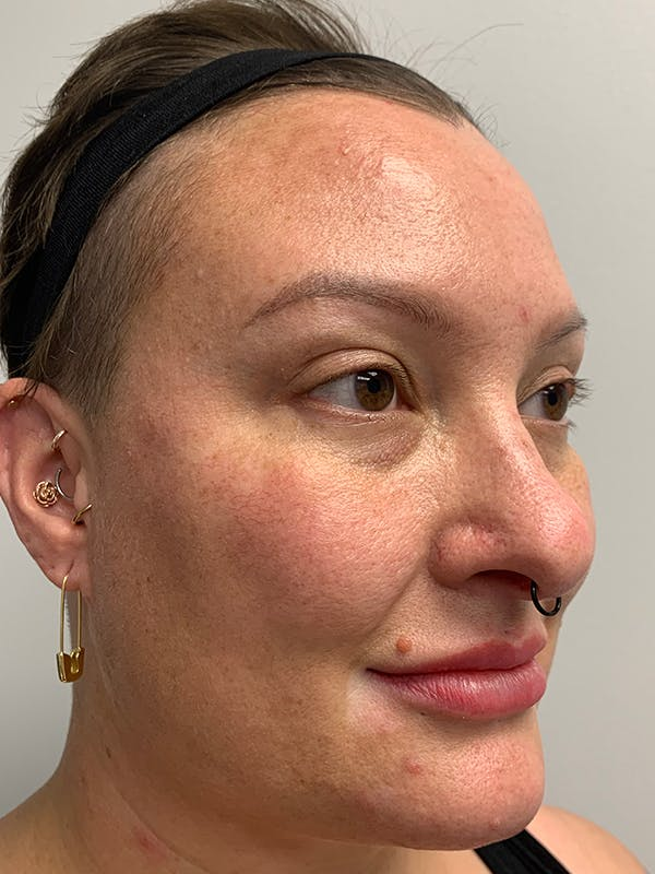 Chemical Peels Gallery - Patient 55482768 - Image 3