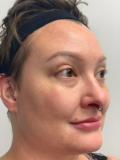 Chemical Peels Gallery - Patient 55482768 - Image 4