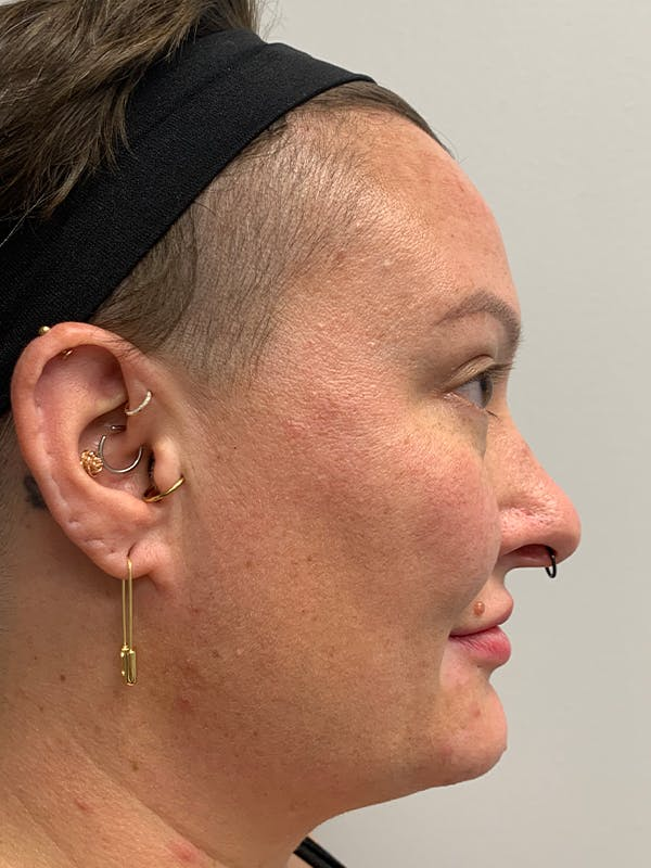 Chemical Peels Gallery - Patient 55482768 - Image 5