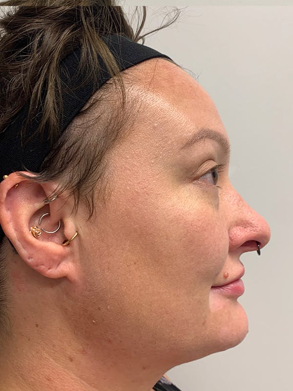 Chemical Peels Gallery - Patient 55482768 - Image 6