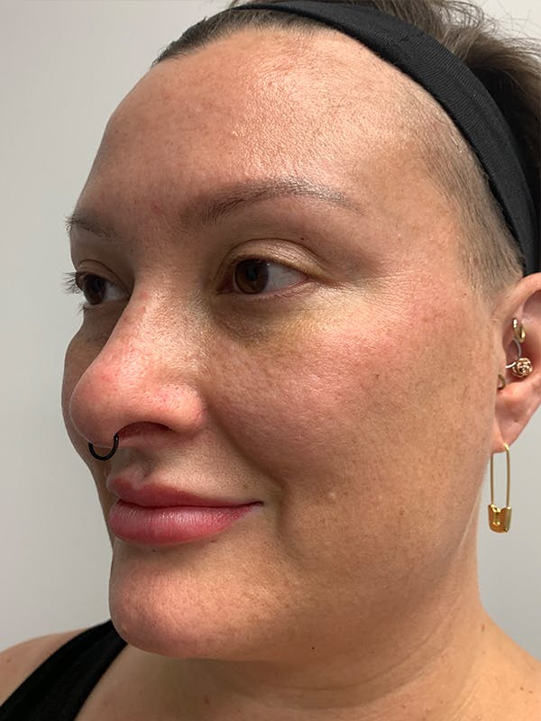 Chemical Peels Gallery - Patient 55482768 - Image 7