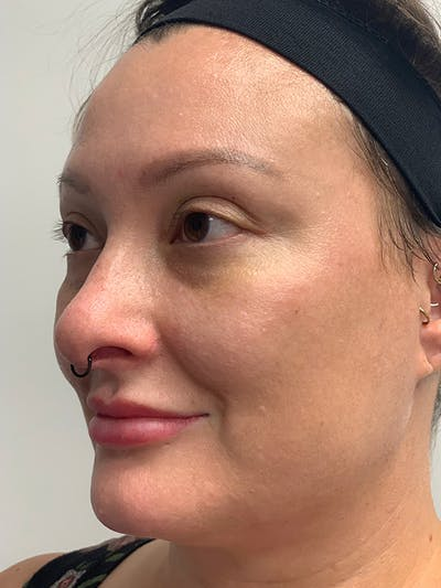 Chemical Peels Gallery - Patient 55482768 - Image 8