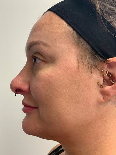 Chemical Peels Gallery - Patient 55482768 - Image 10