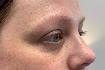 3D Microblading/ Henna Brows Gallery - Patient 55482785 - Image 1