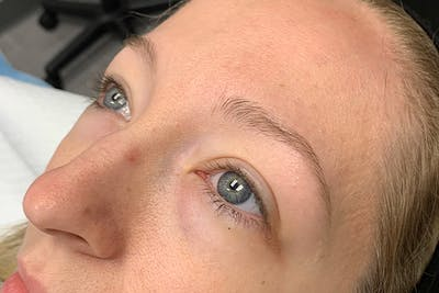 3D Microblading/ Henna Brows Gallery - Patient 55482784 - Image 1