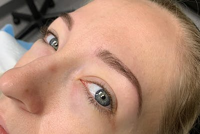 3D Microblading/ Henna Brows Gallery - Patient 55482784 - Image 2