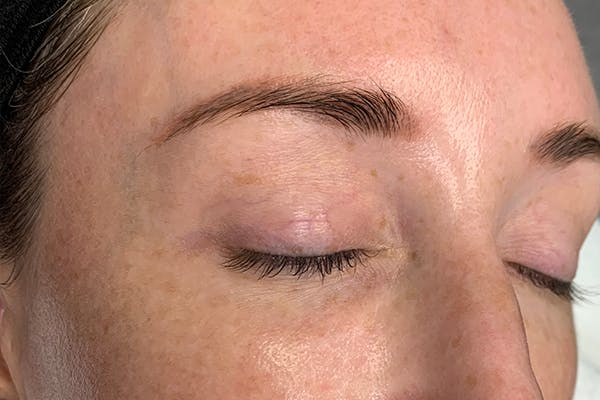 3D Microblading/ Henna Brows Gallery - Patient 55482783 - Image 1