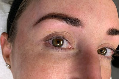 3D Microblading/ Henna Brows Gallery - Patient 55482783 - Image 2