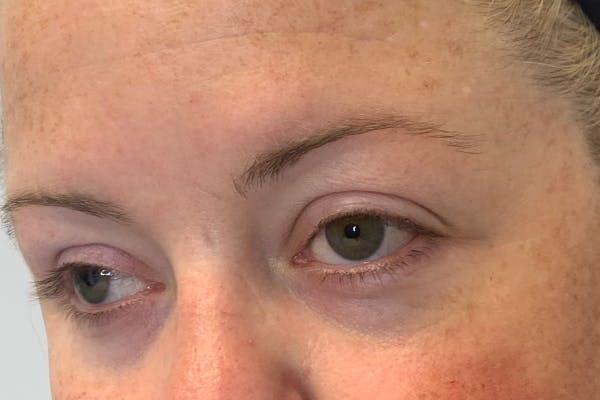 3D Microblading/ Henna Brows Gallery - Patient 55482782 - Image 1