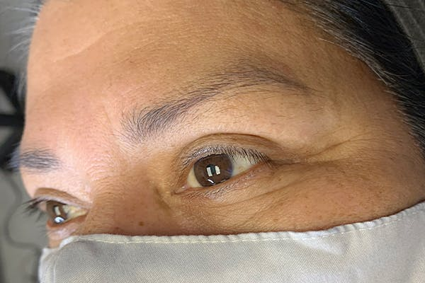 3D Microblading/ Henna Brows Gallery - Patient 55482781 - Image 1